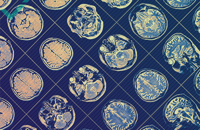 Les avantages d'un cerveau multilingue